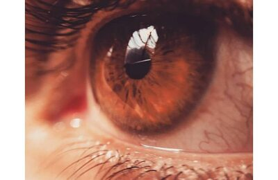 Crucial Things to Look for When Choosing an Optometrist